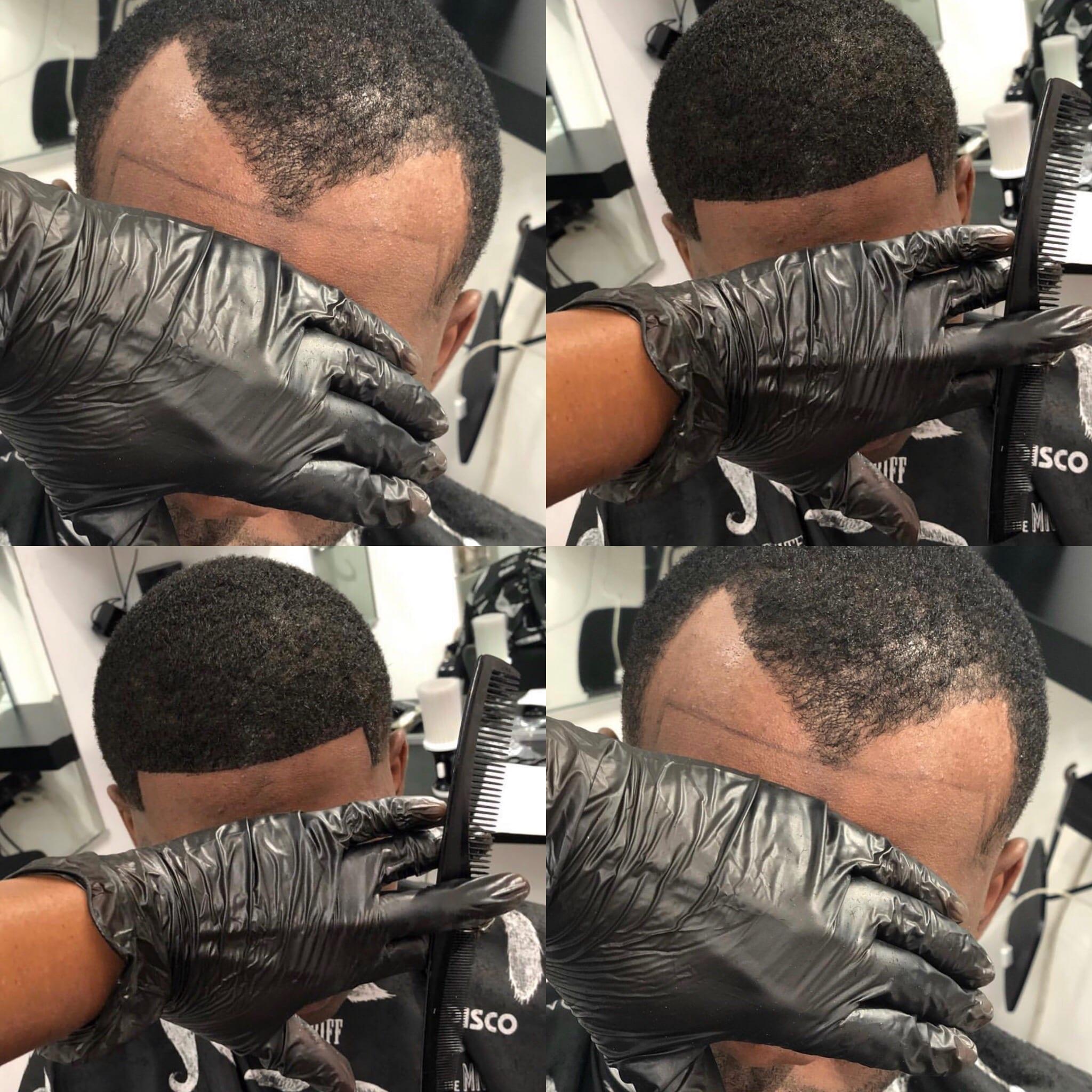 Hair line restoration LA