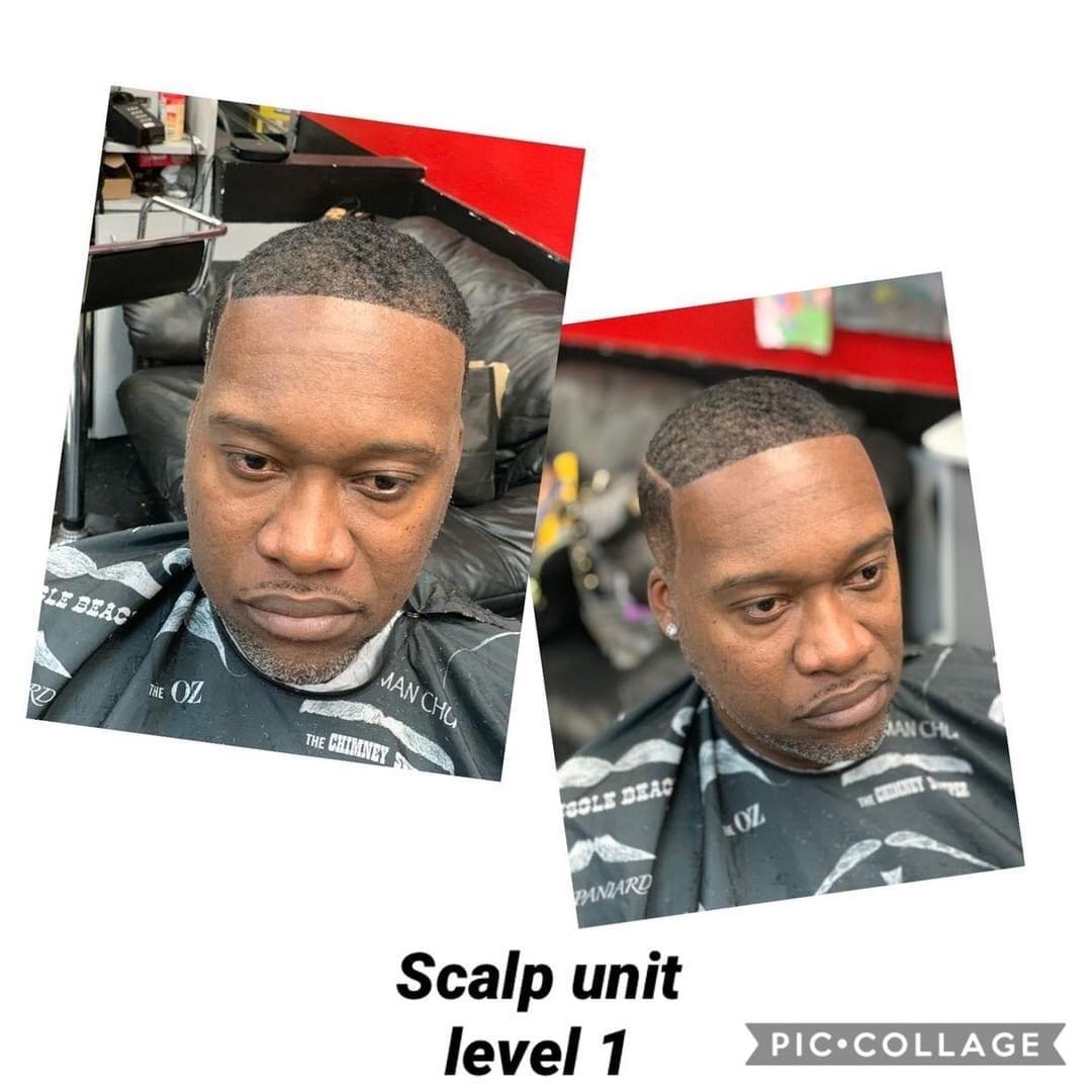 Scalp Unit Level 1