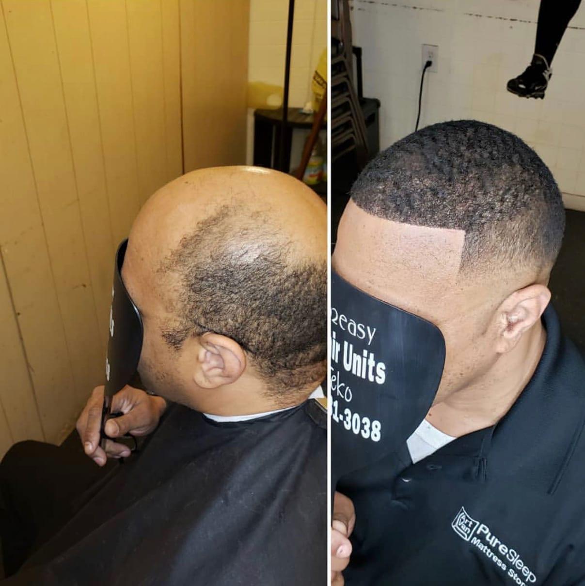 Hair replacement unit detroit MI